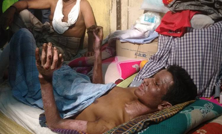 petrol bomb attack, attack against rohingyan, refugee, myanmar